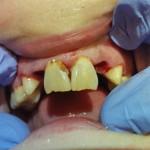 Patient 5  - During